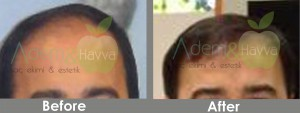 Before_After_as