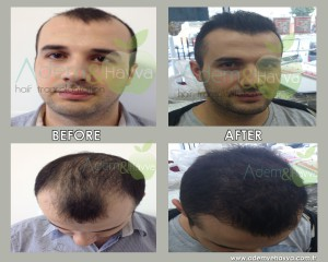 before_after_aa