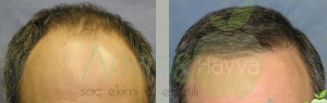 before_after_hair_tranpslantation_5