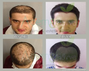 before_after_hy