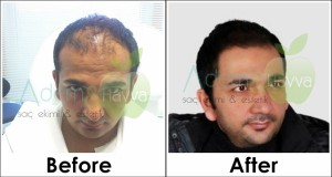 before_after_md
