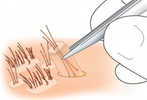 Hair Transplantation with FUE Method